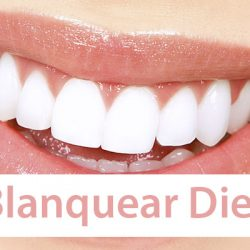 Blanquear los dientes en fotografías