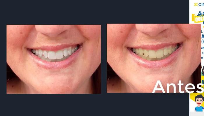 dentadura blanca editor online